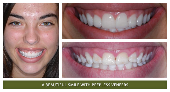 Smile Gallery Gordon West Dds Aesthetic Amp General