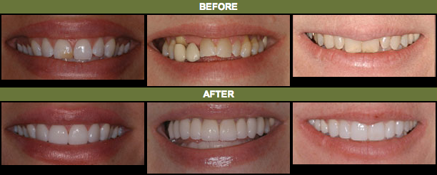 Before and after photos of cosmetic dentistry patients of Lafayette, CO cosmetic dentist Dr. Gordon West