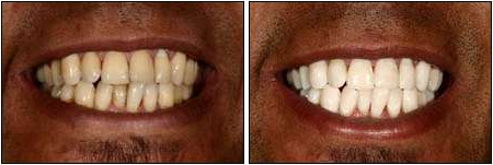 teeth bleaching dentist Lafayette, CO to whiten teeth