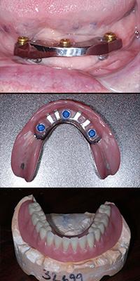 denture implants dentist Lafayette, CO and Boulder