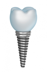 Single Tooth Dental Implant Lafayette CO - Boulder County Smiles