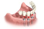 implant supported dentures Boulder