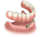 dental implants dentist in Boulder