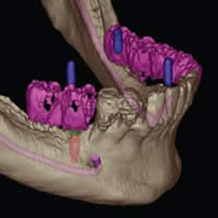 dental implants surgery in Boulder and Lafayette, CO