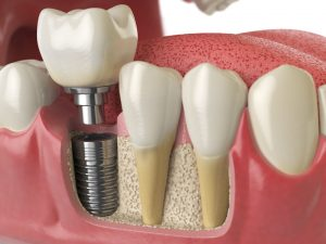 Dental Implant Single Tooth Replacement Lafayette CO - Boulder County Smiles
