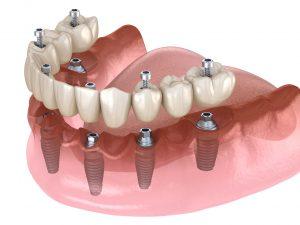 Full Arch Denture Implants Lafayette CO - Boulder County Smiles